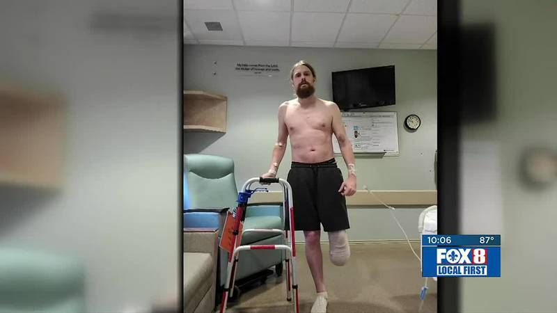 COVID patient has leg amputated